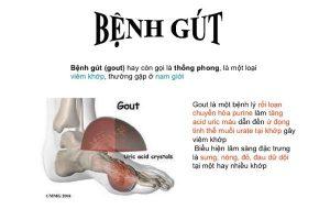 Bệnh Gout (gút) là gì?
