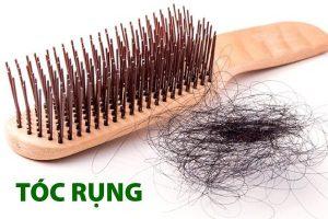 tóc rụng